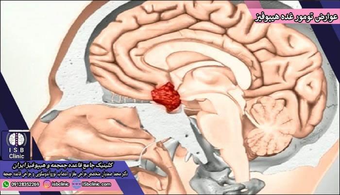 علایم و عوارض تومورهای غده هیپوفیز