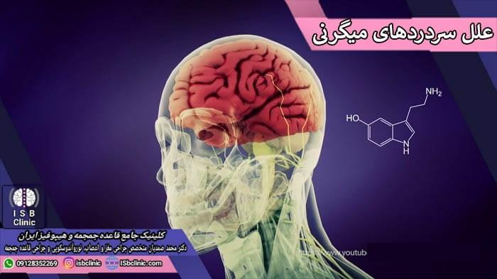 علل بروز سردردهای میگرنی