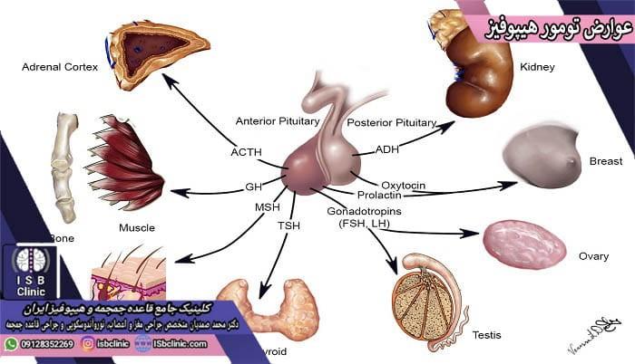 عوارض تومورهای غده هیپوفیز