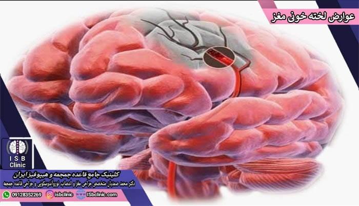 عوارض لخته های خونی در مغز