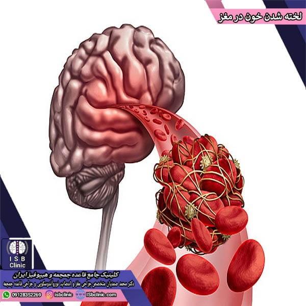 لخته شدن خون در مغز