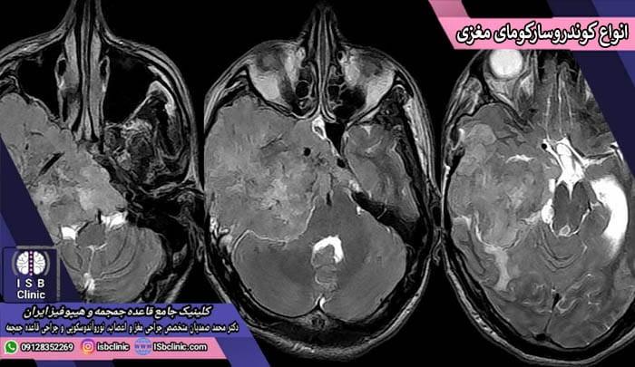 دسته بندی انواع کوندرو سارکومای مغزی