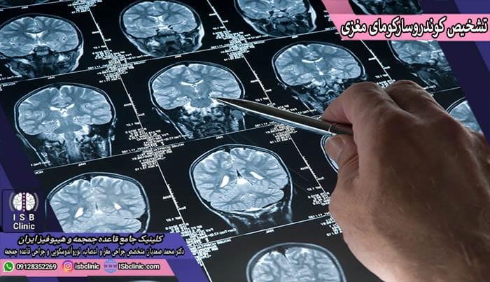 روش های تشخیص کوندرو سارکومای مغزی