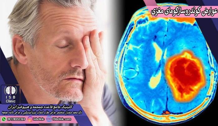 علایم و عوارض کوندرو سارکومای مغزی