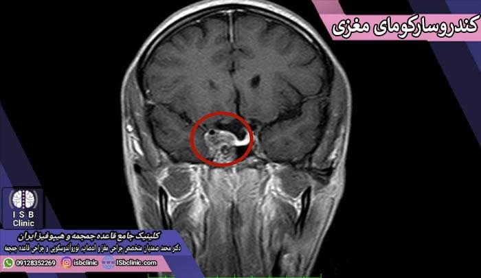 کوندرو سارکومای مغزی چیست