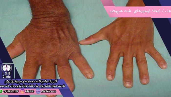 علت تومورهای غده هیپوفیز