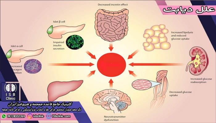 علل بروز انواع قند خون (دیابت) در افراد