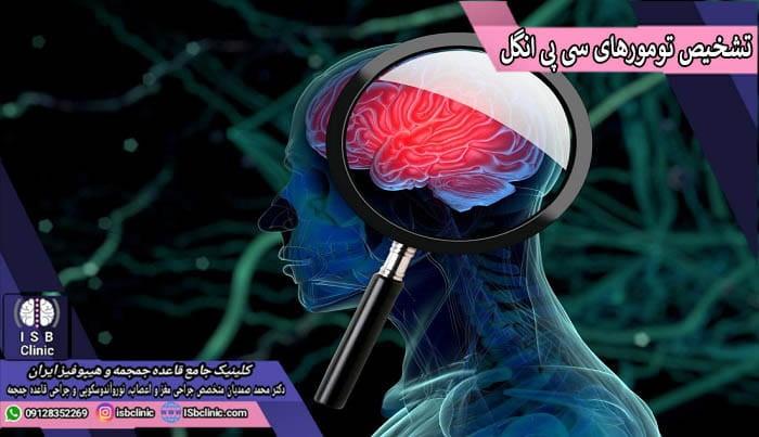 روش های تشخیصی تومورهای سی پی انگل