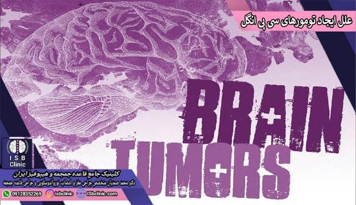 تشدید تومورهای سی پی انگل