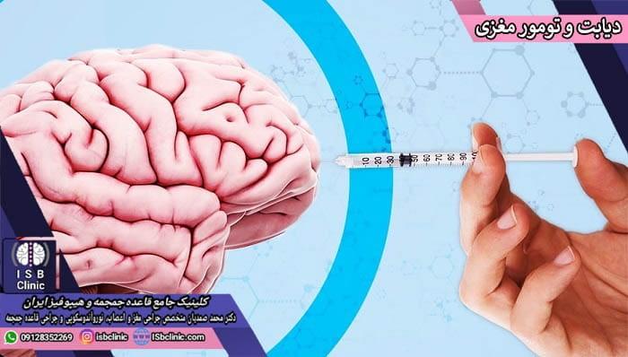 تاثیرات متقابل قند خون (دیابت) و تومورهای مغزی