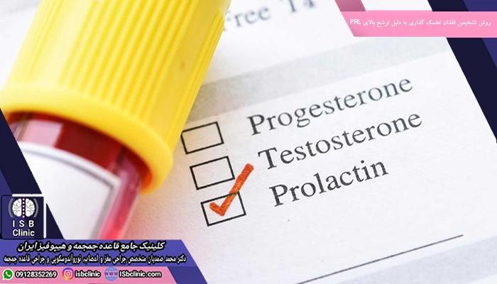 روش تشخیص فقدان تخمک گذاری به دلیل ترشح بیش از حد PRL