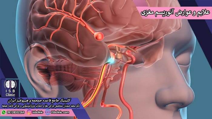 علایم و عوارض آنوریسم مغزی