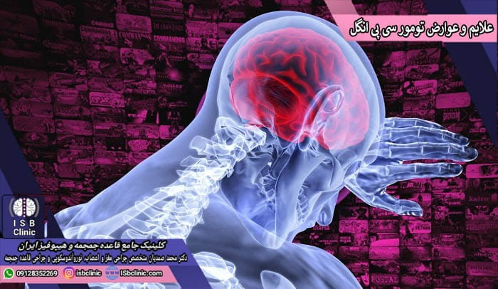 علایم و عوارض تومور سی پی انگل