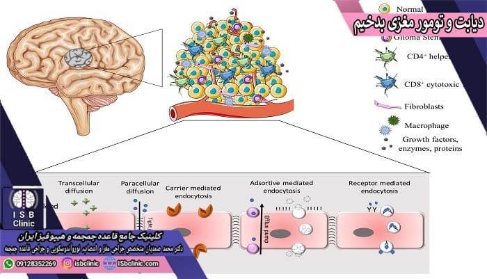 تاثیر قند خون (دیابت) بر تومورهای مغزی بدخیم