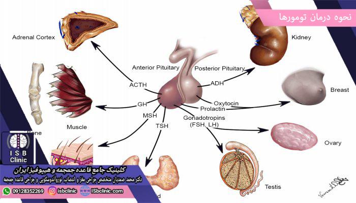 درمان تومورهای غده هیپوفیز