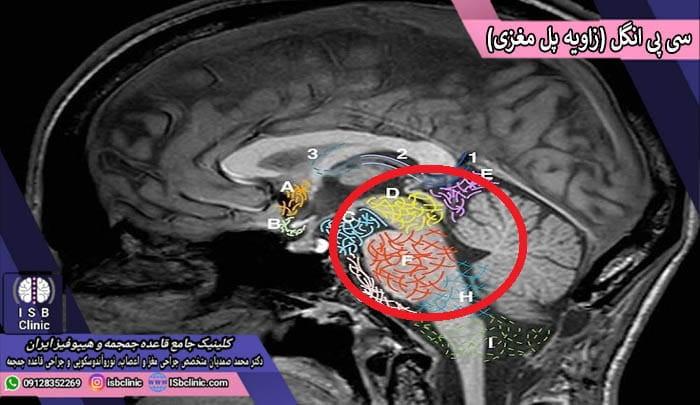 تومور سی پی انگل cpa