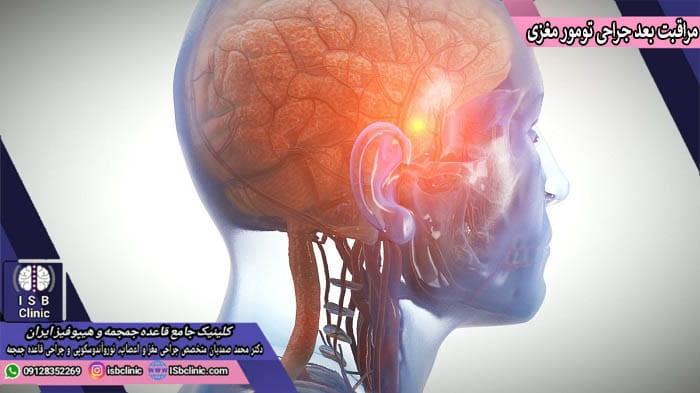 مراقبت های بعد از عمل جراحی تومور مغزی