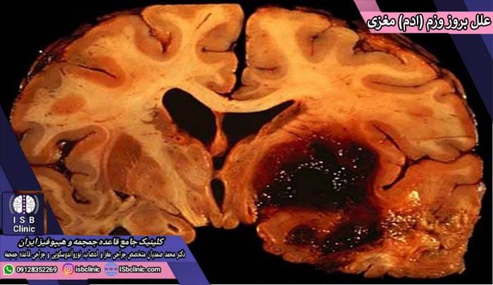 علل بروز ورم مغز