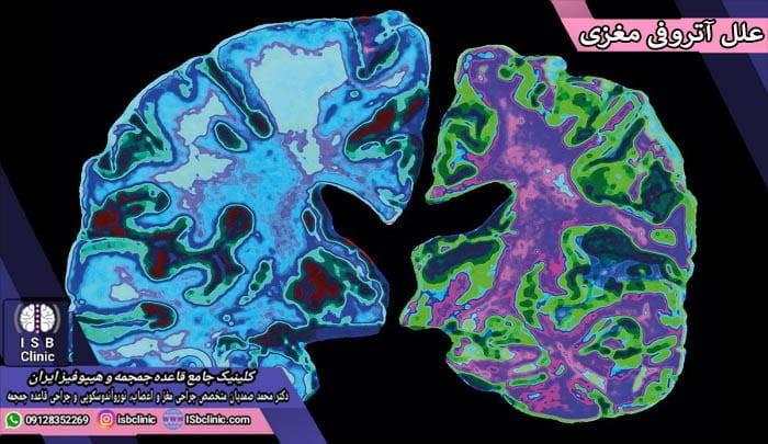 علل بروز آتروفی مغزی