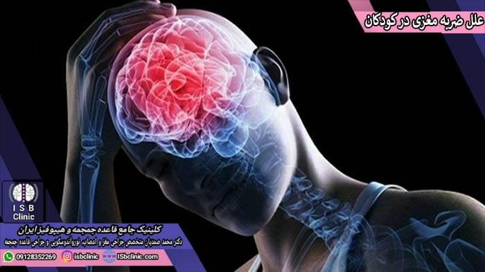 علل بروز ضربه مغزی در کودکان