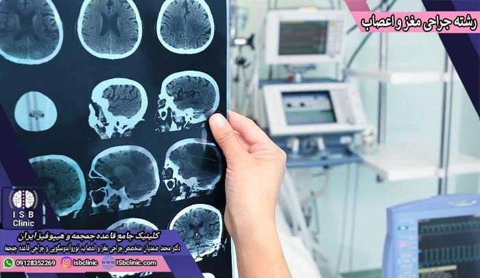 رشته جراحی مغز و اعصاب