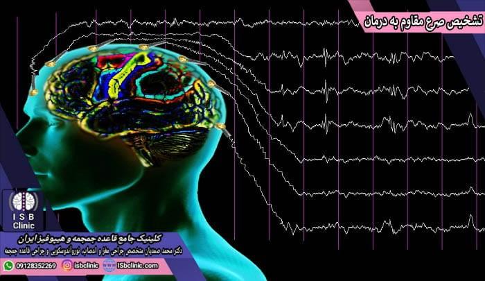 روش تشخیص صرع و تشنج مقاوم به درمان