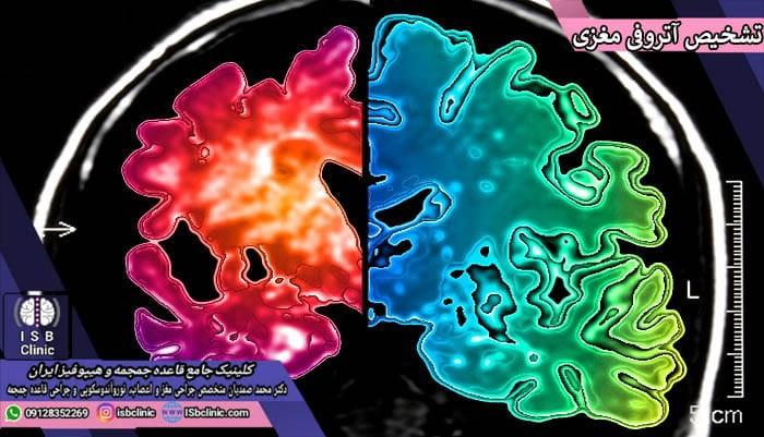 روش های تشخیص آتروفی مغزی