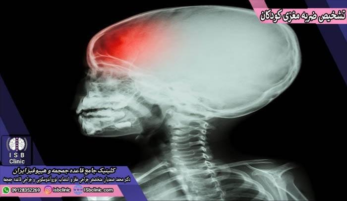 روش های تشخیص ضربه مغزی در کودکان
