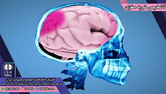 شیوه های تشخیص ضربه مغزی در اثر تصادف
