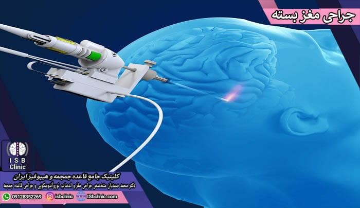جراحی مغز باز در برابر جراحی مغز بسته