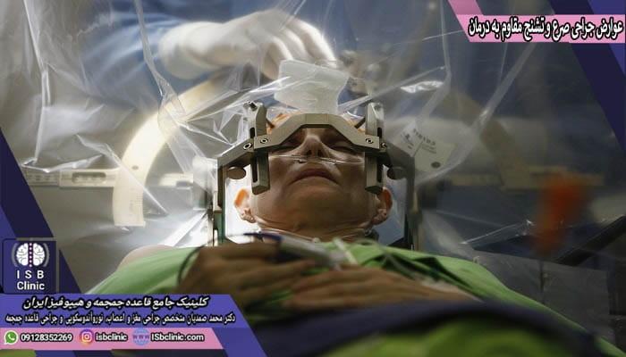 عوارض احتمالی جراحی صرع و تشنج مقاوم به درمان