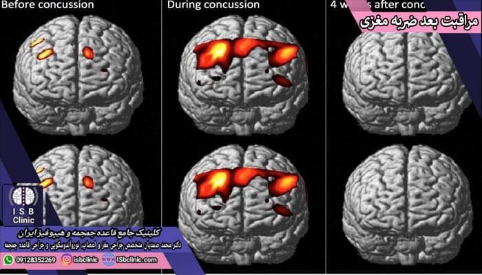 مراقبتهای پس از درمان ضربه مغزی در کودکان