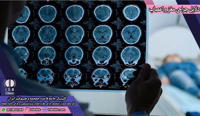 دلایل جراحی مغز انسان