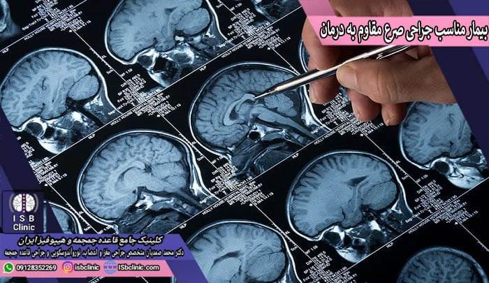 انتخاب بیمار مناسب جراحی صرع و تشنج مقاوم به درمان