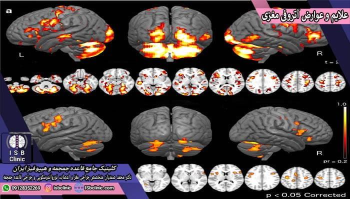 علایم و عوارض ایجاد آتروفی مغزی