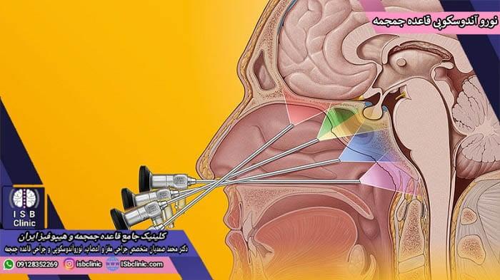 جراحی قاعده جمجمه