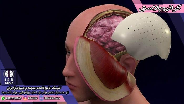 جراحی زیبایی جمجمه یا کرانیوپلاستی