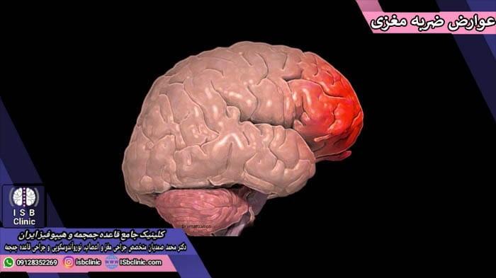 علایم و عوارض ضربه مغزی