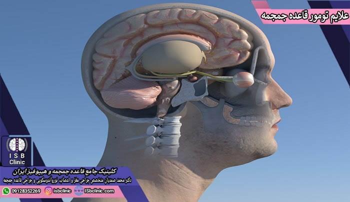 علایم و عوارض تومور قاعده جمجمه