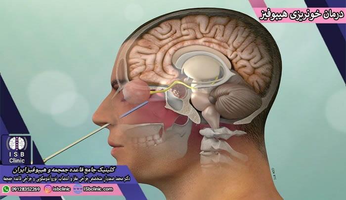 رویکرد های درمانی خونریزی غده هیپوفیز مغز