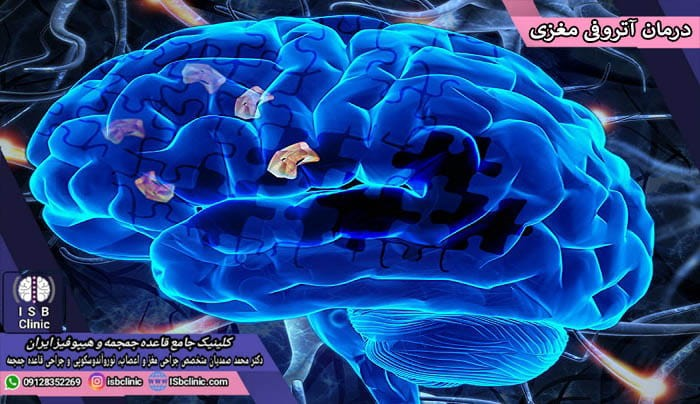 روش های درمان آتروفی مغزی در انسان