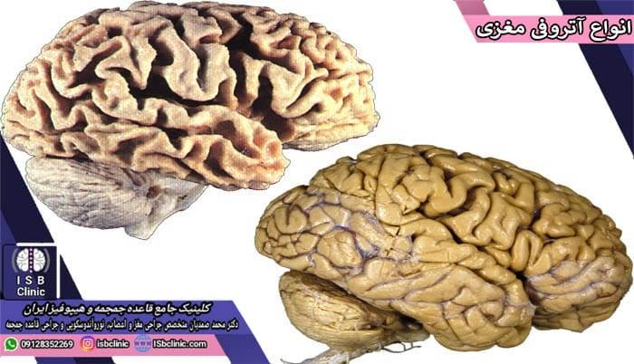 انواع آتروفی مغزی