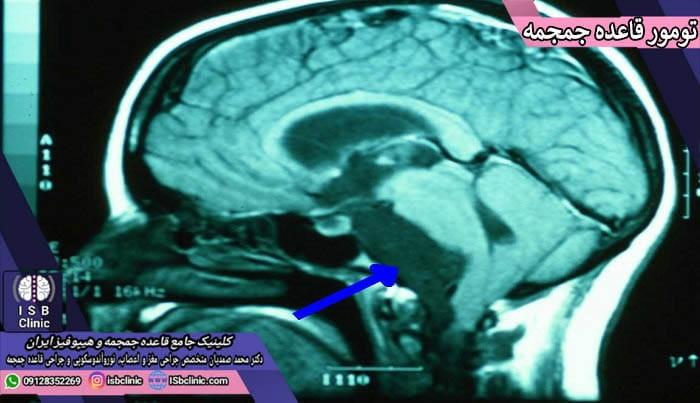 انواع تومورهای قاعده جمجمه