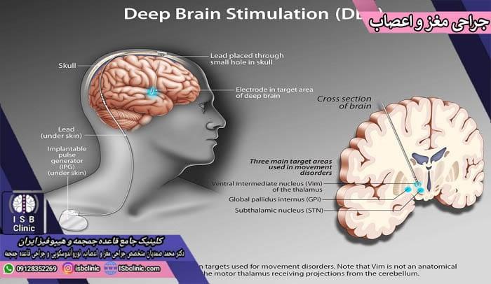 انواع جراحی های مغز و اعصاب