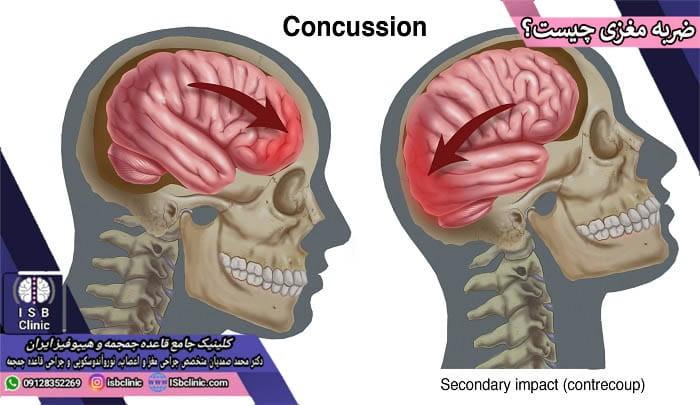 ضربه مغزی چیست