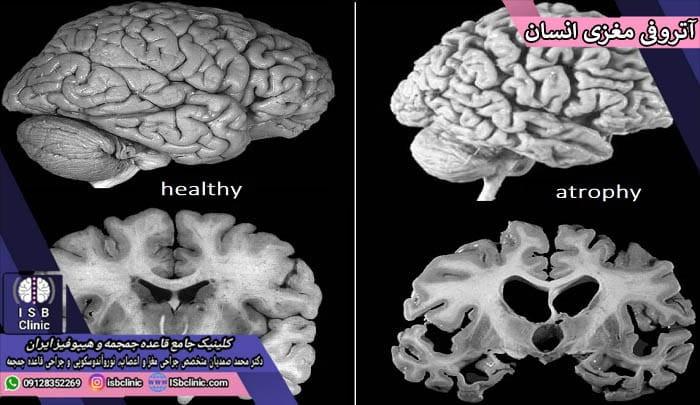 آتروفی مغزی چیست