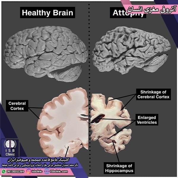 آتروفی مغزی
