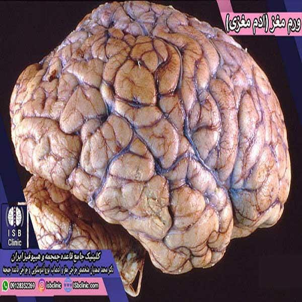ادم مغزی