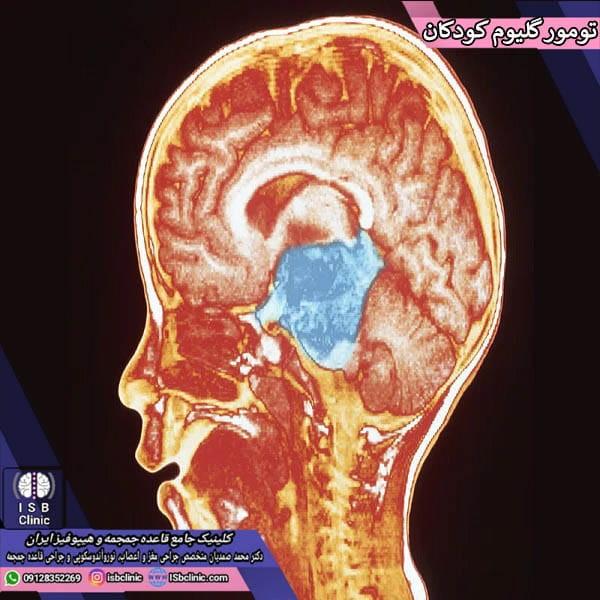 Glioma tumors in children