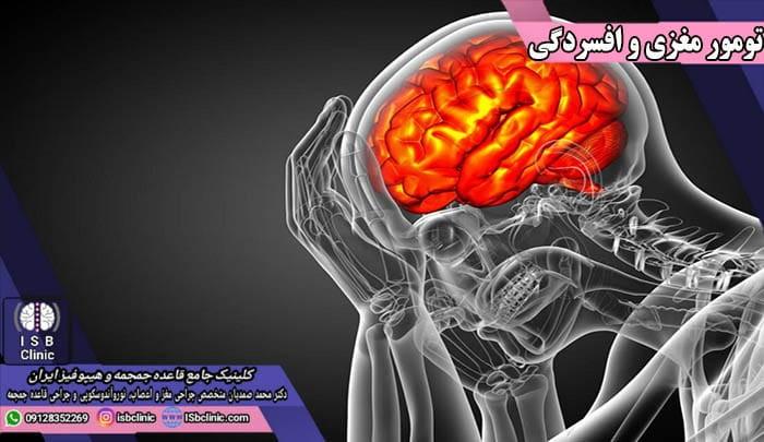 افسردگی به عنوان نشانه تومورهای مغزی